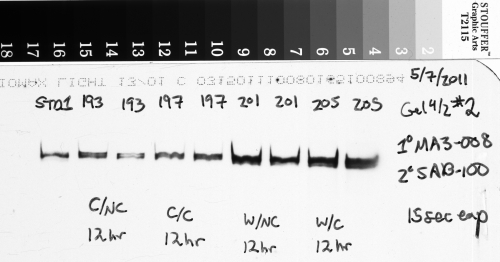 An example of a western blot image captured using x-ray film, later scanned to digital with a transparency scanner.